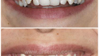 Diş estetiği için Zirkonyum Diş Kaplama