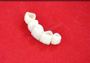 Zirkonyum diş malzemesi özellikleri ve örneği