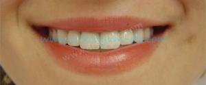 Zirkonyum Diş Sonrası