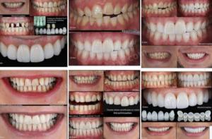 Diş Kaplama Malzemeleri